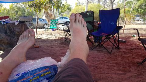 Pete's swollen ankle in the Gums campgrounds at Arapiles